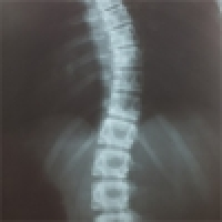 """Three-dimensional"" therapy of scoliosis according to mrs. Schroth"