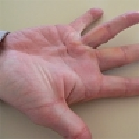 Dupuytren's contracture - possibilities of the therapy, shock wave application