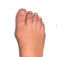 Bunion and treatment with shockwave therapy in modern physiotherapy