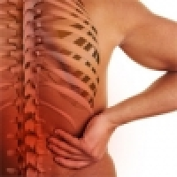 Blocked lumbar spine (Houser), Acute back pain, inflammation of the sitting nerve